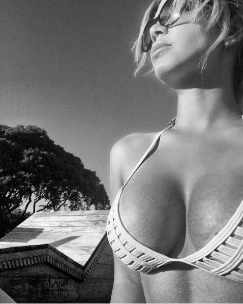Екатерина Колисниченко не может нарадоваться результатом пластической операции груди