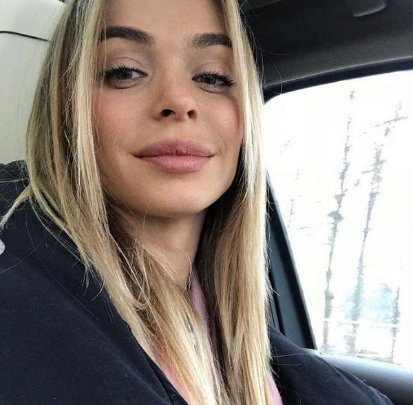 Анна Хилькевич призналась в том, что колола ботокс