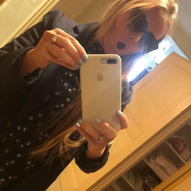 Дана Борисова получила ожог головы