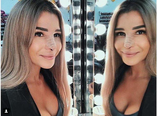 Екатерина Колисниченко ляжет под нож пластического хирурга и ради этого набрала вес