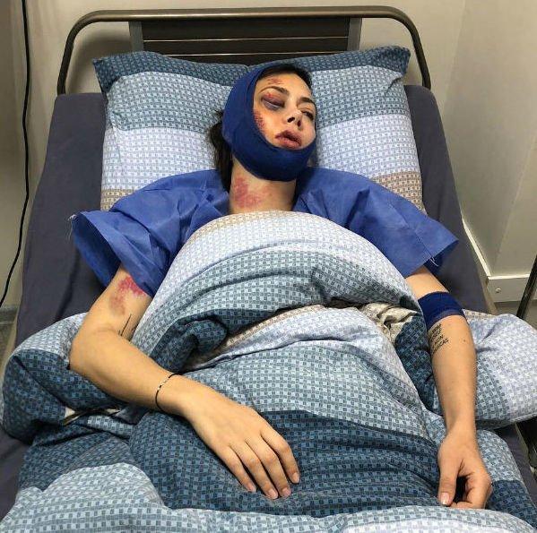 Настасья Самбурская шокировала фотографией с больничной койки