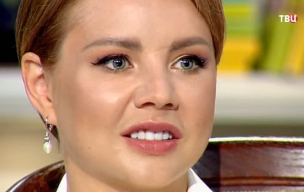 Певица МакSим показала новый нос, зубы и вышла замуж