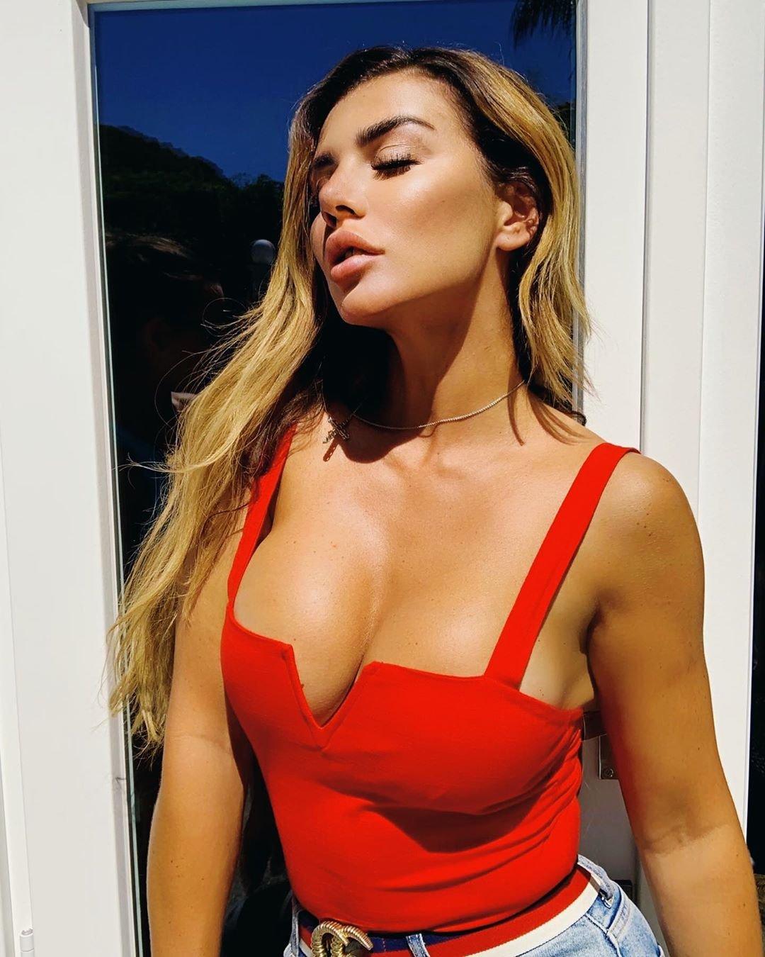Певица Анна Седокова шокировала состоянием кожи. Пятна по всему лицу и телу