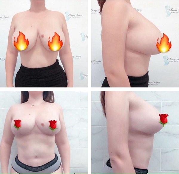 Модель Plus Size Юлия Рыбакова показала поклонникам свою новую грудь