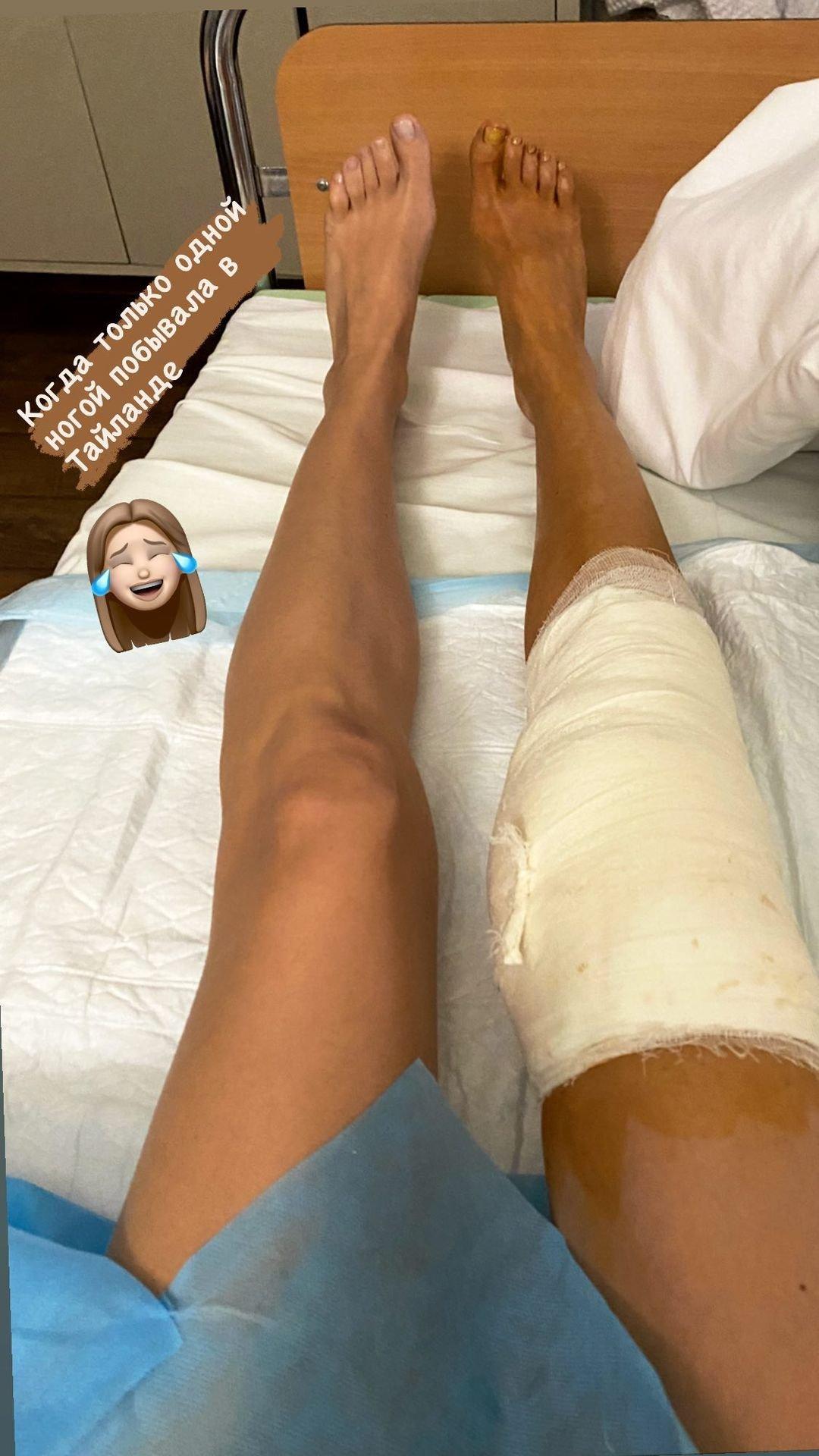 Евгения Лоза перенесла хирургическое вмешательство на колене