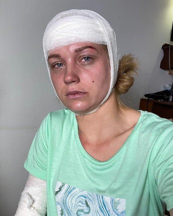 Кристина Асмус опубликовала фото с перебинтованной головой: что случилось с актрисой